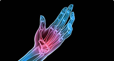 An image of a hand where red indicates the pain area