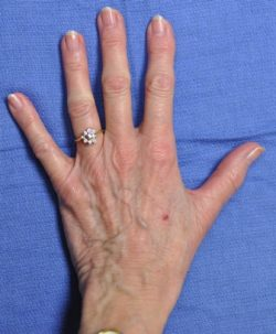 Normal Hand post operation