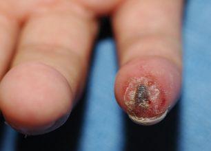 ulnar artery clotting