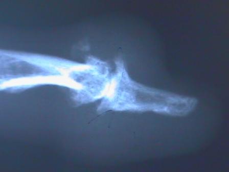 An MRI of a Advanced Degenerative Arthritis