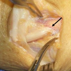An open flesh area showing a ligament with the intended arrow pointing to it