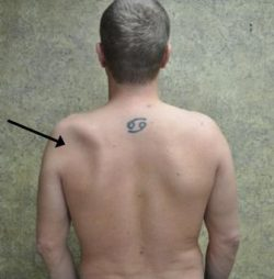 An arrow pointing to the Atrophy where the back of the patient is indented on one side and is fine on the other