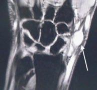 A MRI of a cyst