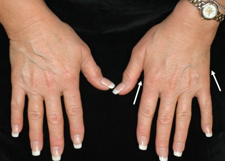 An image of two hands that appear to be normal