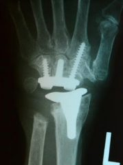 An xray of a hand implant