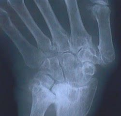 The xray image of a hand