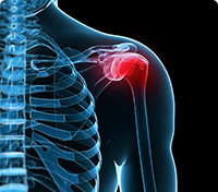 Shoulder of a skeleton where red indicates a specific pain area