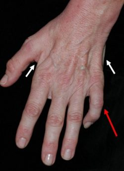 A image with arrows leading to different fingers