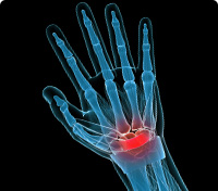 Wrist of a skeleton where red indicates a specific pain area
