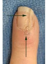 Deep Trough in Nail
