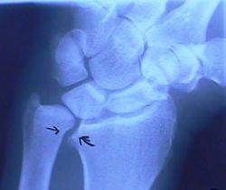 Ulnar wrist x ray