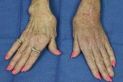 woman's hands effected by arthritis