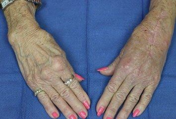 arthritis in woman's hands