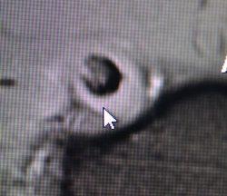 MRI of Bicep Tendonopathy