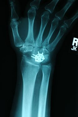 x ray of limited fusion wrist