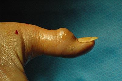 Ganglia Cyst surgery