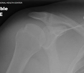 xray of shoulder after reduced