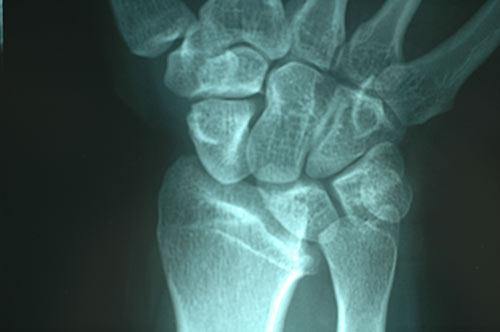 ulnocarpal that causes ulnar wrist pain